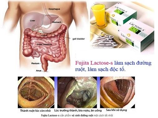cong-dung-fujita-lactose-s