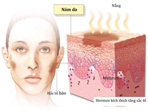 Tế bào sắc tố biểu bì