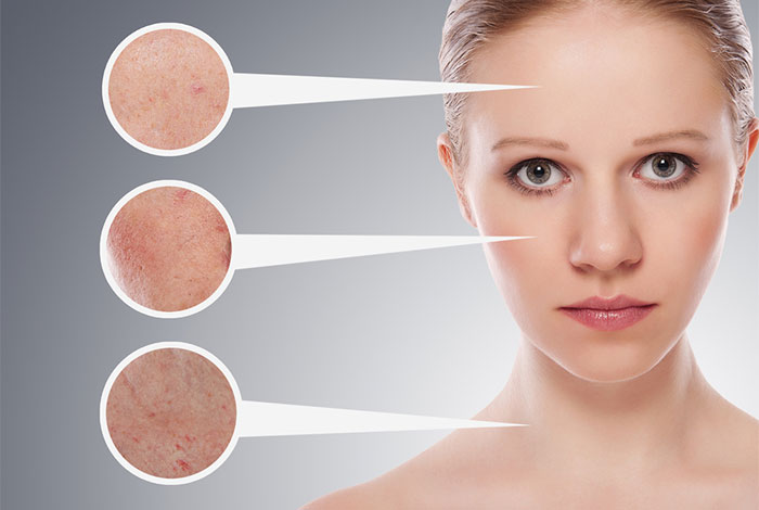 phân tích da bước quan trọng để có một làn da đẹp