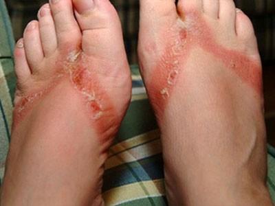 Mắc bệnh khi dùng giày dép lậu từ Trung Quốc