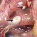 Bệnh nấm phổi