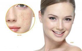 Dịch Vụ Chăm Sóc Làm Đẹp Da Mặt Tại Nhà: Da mặt chuyên sâu  (10 buổi)