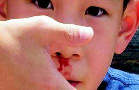 Chảy Máu Cam Ở Trẻ Em: Xử Trí Và Phòng Ngừa