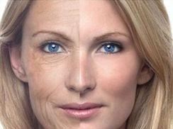 Trẻ hoá da bằng công nghệ Fractional