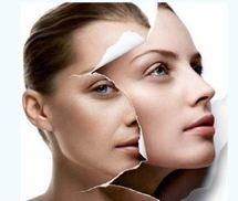Những điều cần biết về phẫu thuật căng da mặt