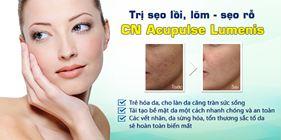 Điều trị sẹo lõm, sẹo mụn, sẹo phẫu thuật, tái tạo da toàn phần bằng công nghệ Acupulse