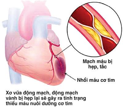 Description: Các bệnh lý tim mạch là nguyên nhân hàng đầu gây đột qụy.