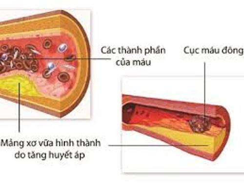Biến chứng trên mạch máu của tăng huyết áp