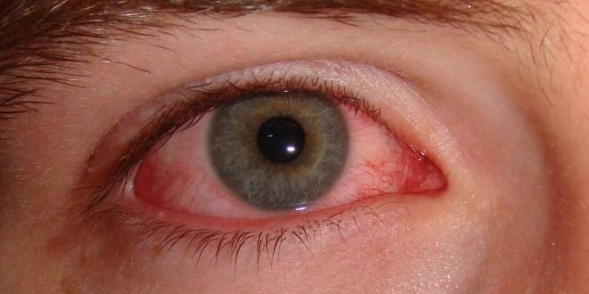 đau mắt đỏ vì nguồn nước bẩn