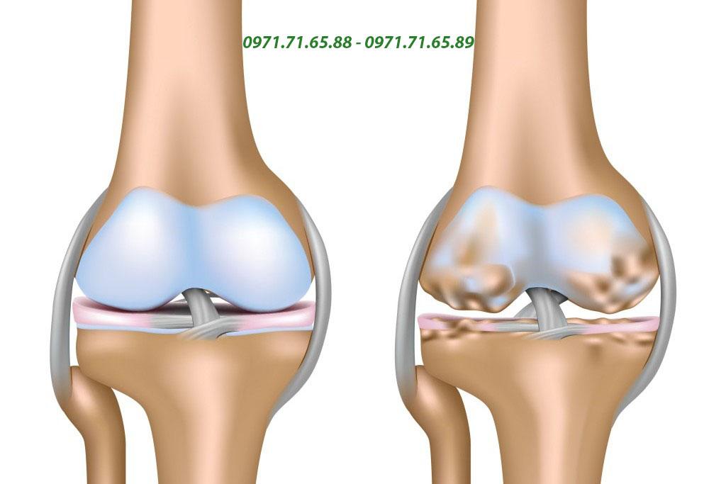 sản phẩm hỗ trợ xương khớp Herbalife Joint Support Advanced usa