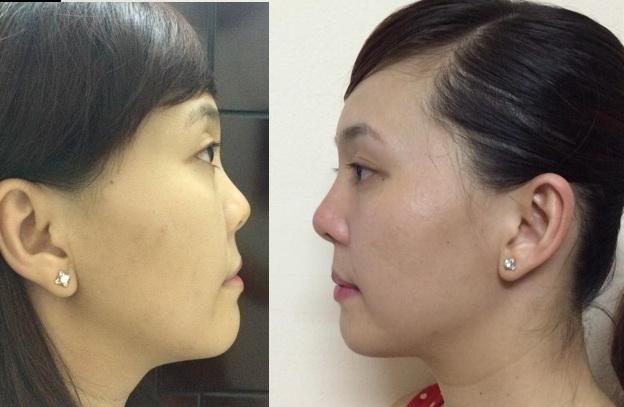 nâng mũi không phẫu thuật, filler mũi