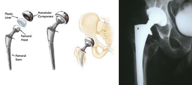hoại tử chỏm xương đùi, thay khớp toàn phần