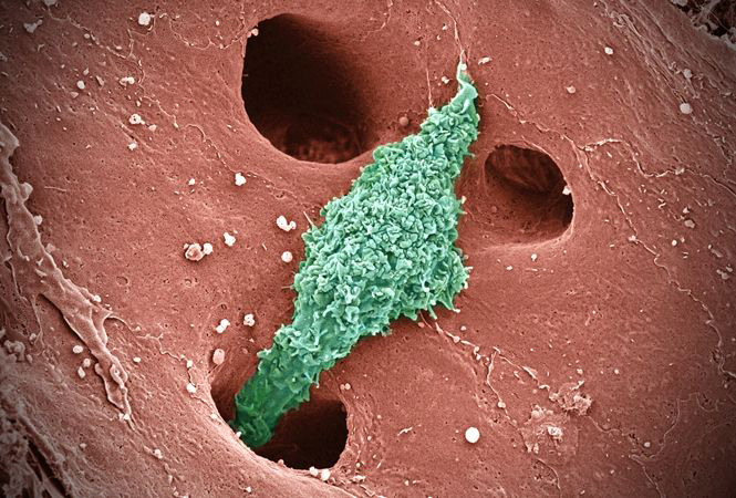 Tế bào Kupffer trong xoang gan