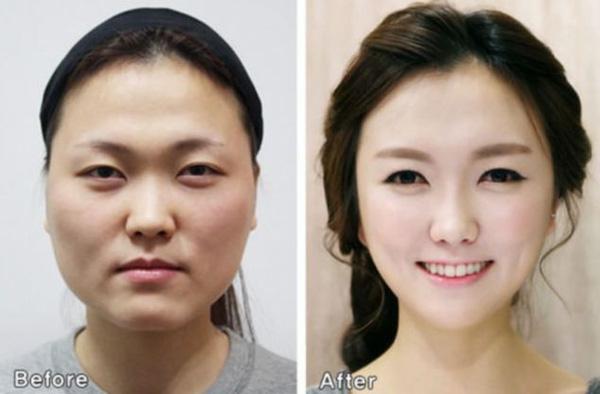 người phụ nữ xấu nhất hành tinh đẹp lên nhờ phẫu thuật thẩm mĩ