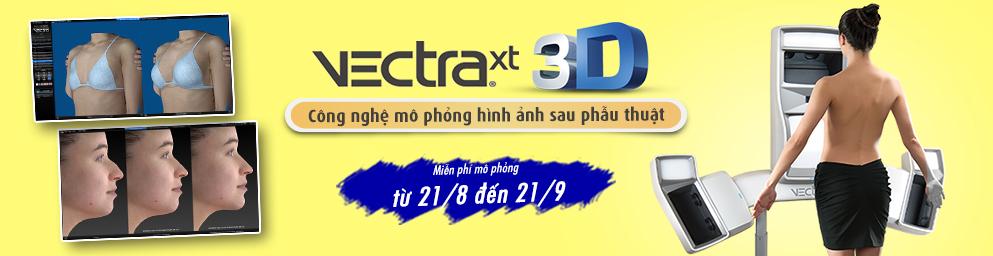Công nghệ mô phỏng hình ảnh 3D VectraXT