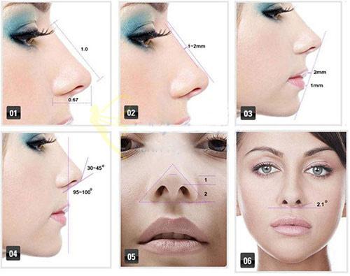 Nâng mũi S-line 3D 55