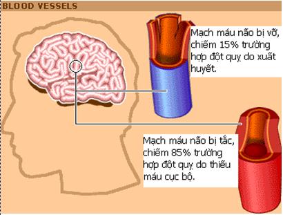 p118783 Ai dễ bị đột quỵ   Tai biến mạch máu não?