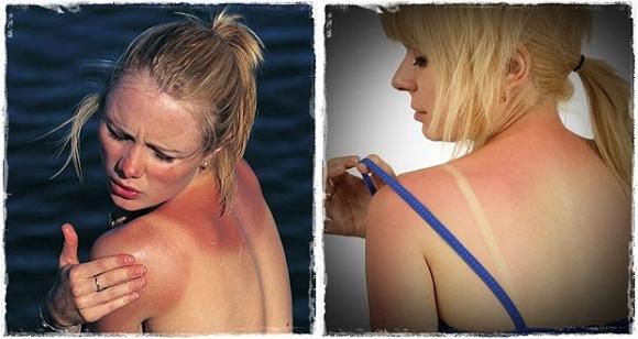 Mỹ phẩm bright dr khắc phục cháy nắng trắng da chỉ trong 14 ngày