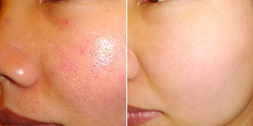 điều trị lỗ chân lông to tại Hà Nội
