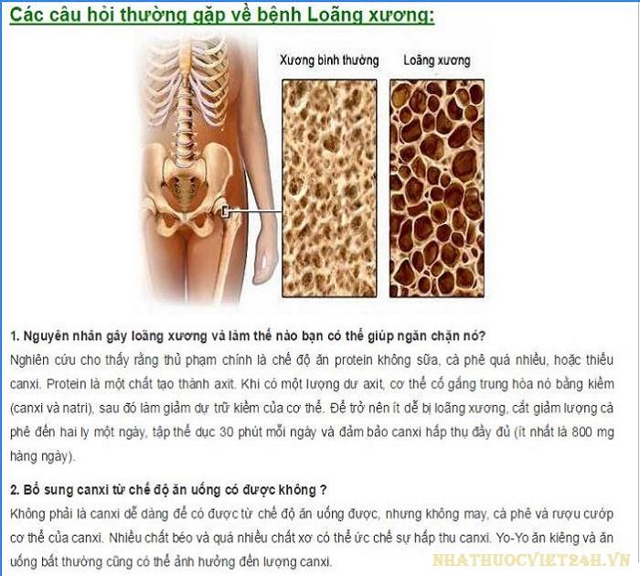 bệnh loãng xương là gì