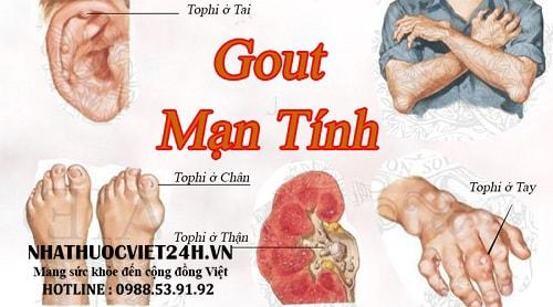 thuốc chữa khỏi hẳn bệnh gout