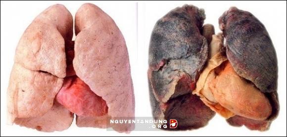 Phổi của người hút thuốc lá và người không hút thuốc lá