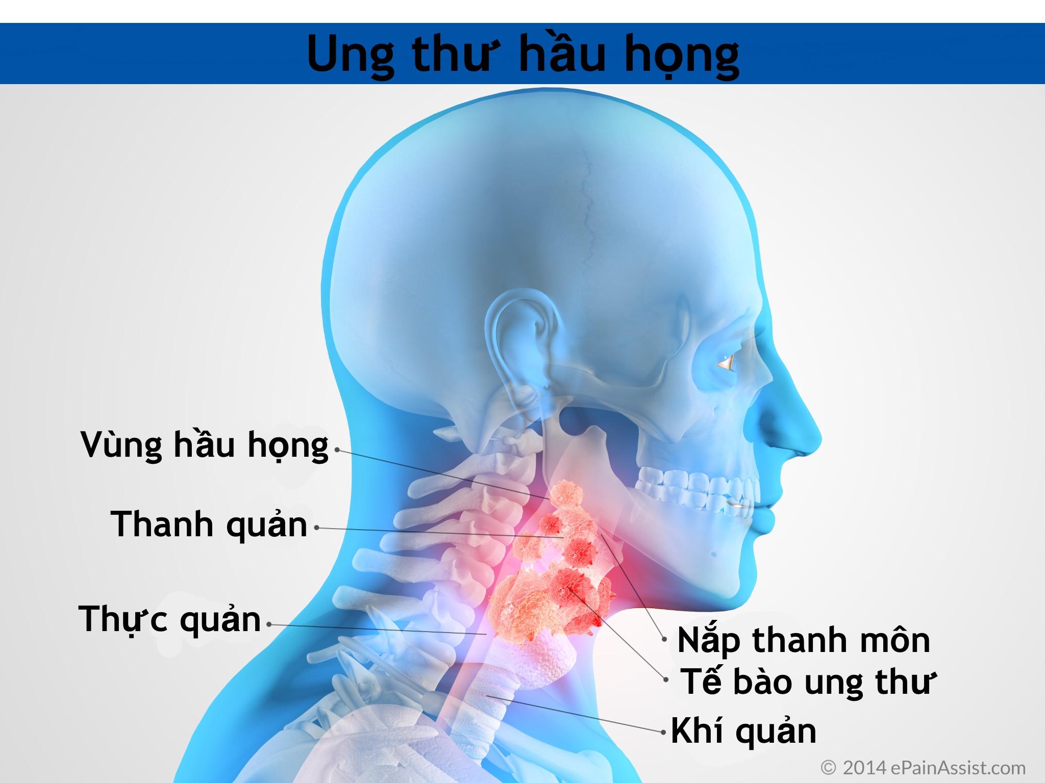Ung thư hầu họng