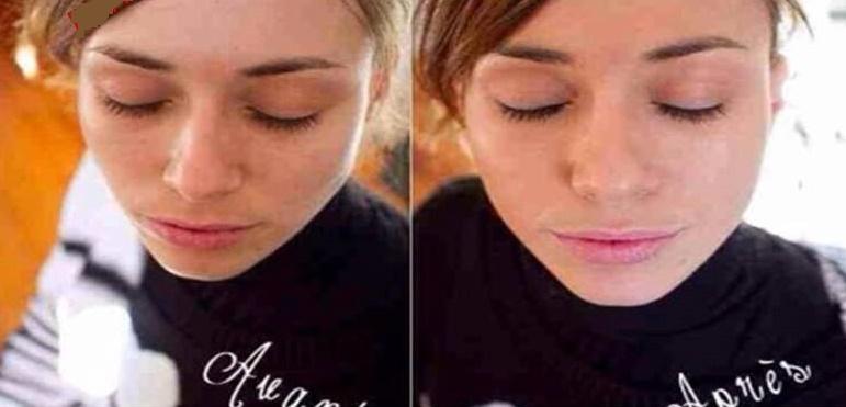 Mặt nạ cao cấp Filorga Meso Mask dưỡng và tái tạo da