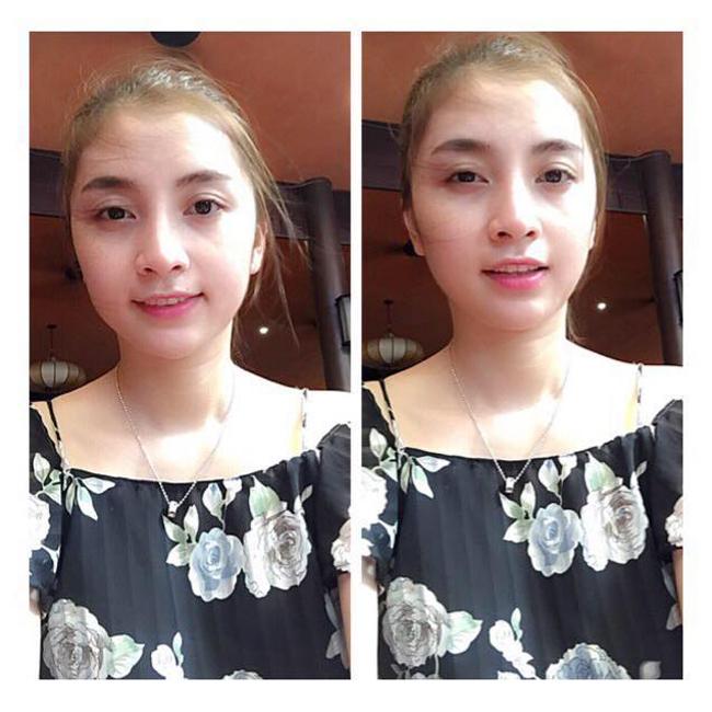 Lam-dep-sau-sinh-beautymom-chi-nga-bach-dang011.jpg