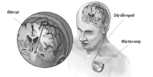 Khám Phá Mới Về Kích Thích Não Sâu Chữa Béo Phì