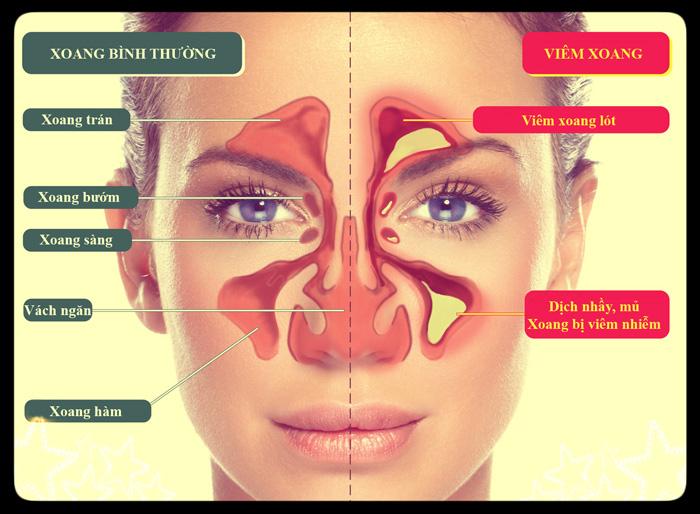 Cấu tạo xoang mũi và các vị trí viêm xoang