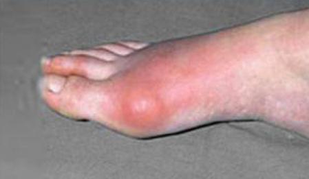 thảo dược ngâm chân 08